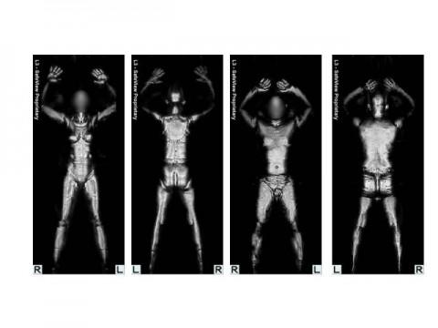 Images from Backscatter Full Body Imaging Device